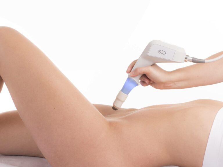 medico aplicando o laser para revejunescimento vaginal