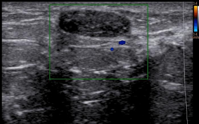 nódulo no ultrassom de mamas