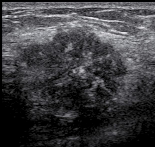 câncer na ultrassonografia de mamas