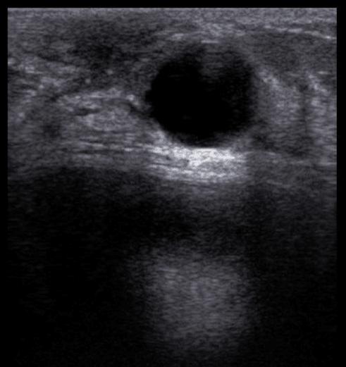 cisto no ultrassom de mamas