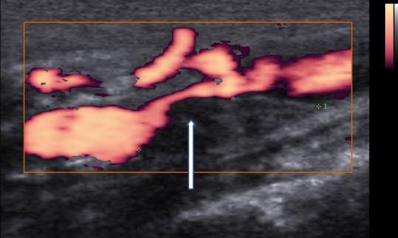 Doppler de artérias carótidas e vetebrais