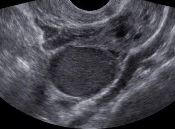 médico especialista em endometriose