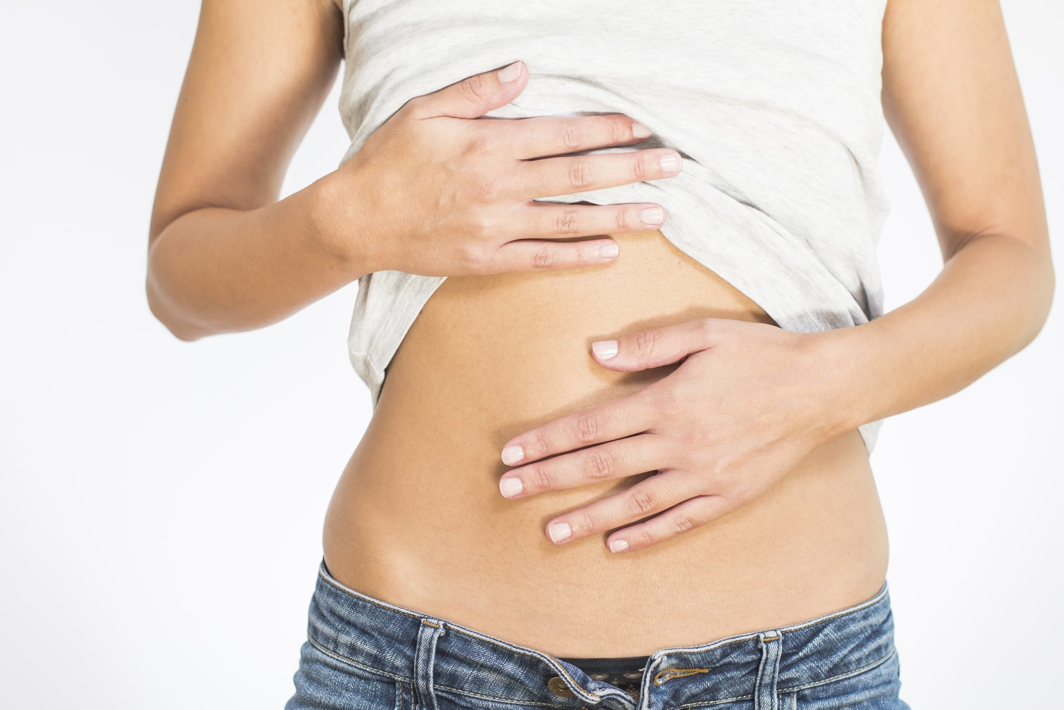Endometriose umbilical