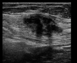 Endometriose de cicatriz de cesárea