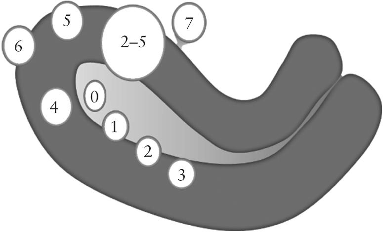 Classificação e tipos de miomas