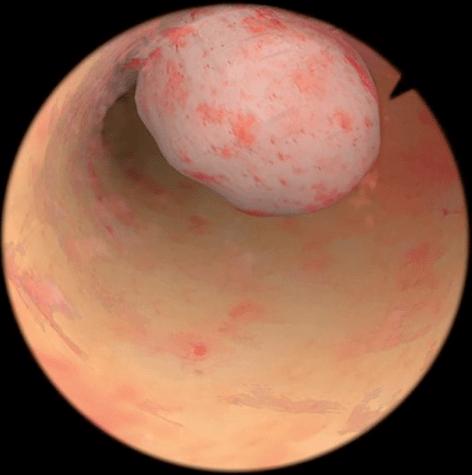Pólipo endometrial na hisperoscopia
