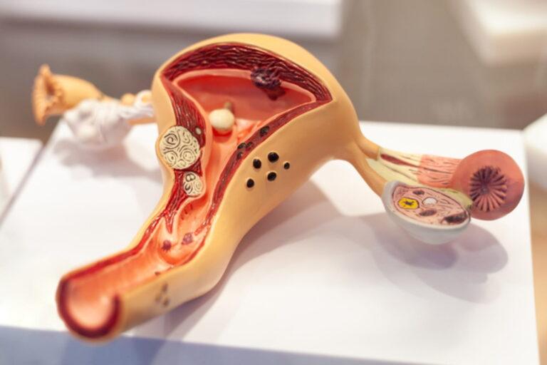 Ginecologista Especialista em Endometrioma
