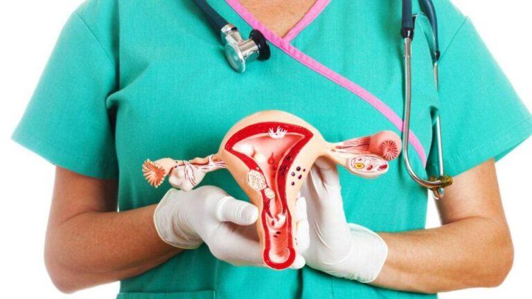 Ginecologista especialista em histerectomia