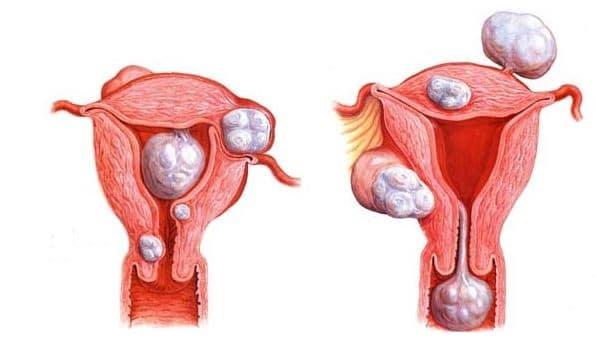 Ginecologista Especialista em Miomectomia